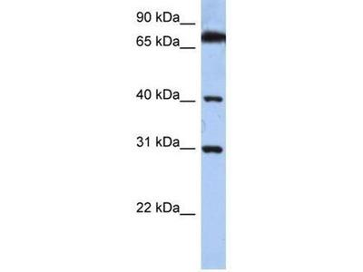 anti-Dehydrogenase/reductase (SDR Family) X-Linked (DHRSX) antibody