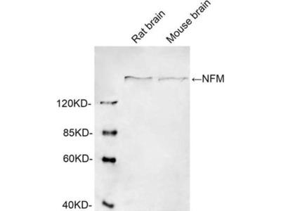 anti-CEBPB (NEFM) antibody