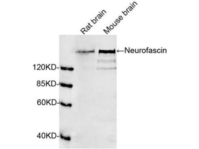 anti-NFASC (Neurofascin) antibody
