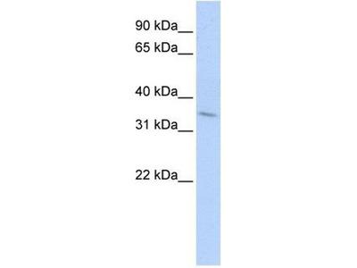 anti-TNFRSF25 antibody