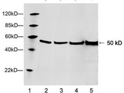 anti-TUBB3 (beta tubulin3) antibody