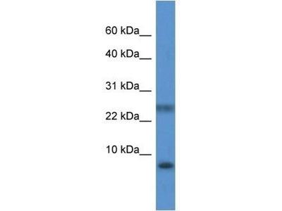 anti-PRAC (PRAC1) antibody
