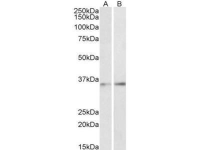 anti-CEBPB antibody