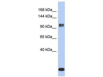 anti-ATXN7 antibody