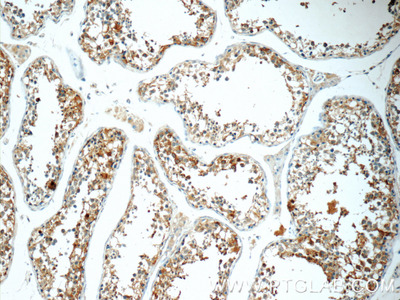 TCN1 Antibody
