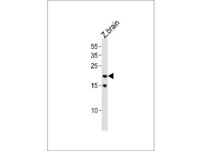 Rabbit Polyclonal TCF21 Antibody