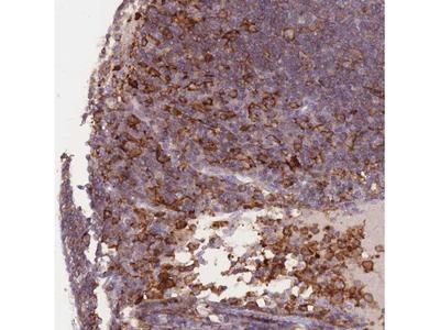 Siglec-3 / CD33 Antibody