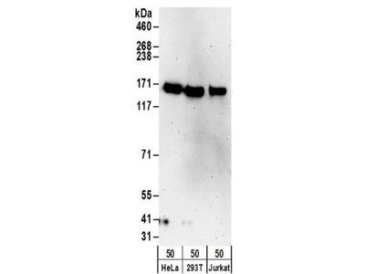 Rabbit Polyclonal TTLL5 Antibody
