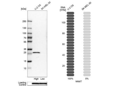 Nicotinamide N-Methyltransferase /NNMT Antibody