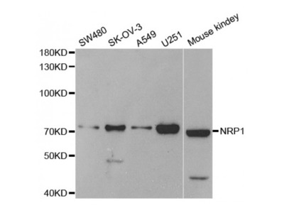 Anti-NRP1 antibody