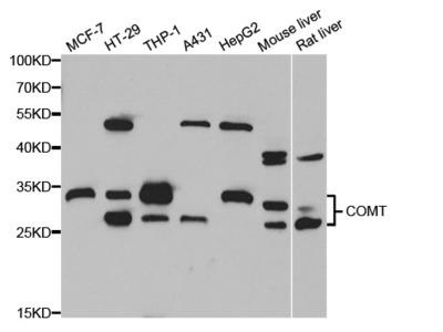 Anti-COMT antibody (STJ27956)