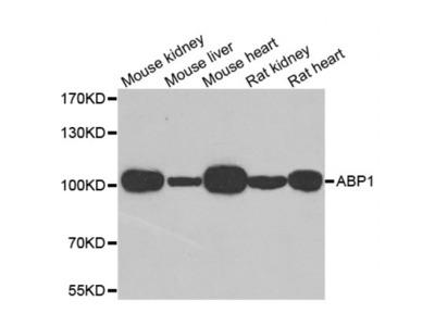 Anti-ABP1 antibody