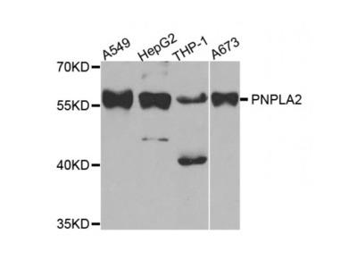 Anti-PNPLA2 antibody