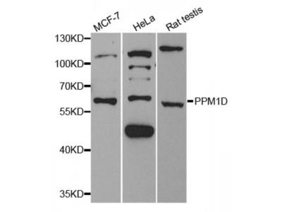 Anti-PPM1D antibody
