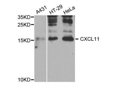 Anti-CXCL11 antibody