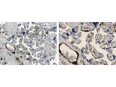 Anti-ALK5 Antibody Products | Biocompare com