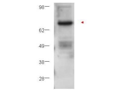 PKC beta Antibody