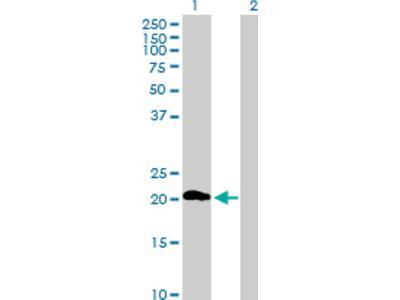 ZDHHC7 Antibody