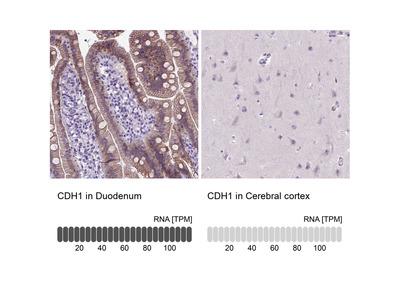Anti-CDH1 Antibody
