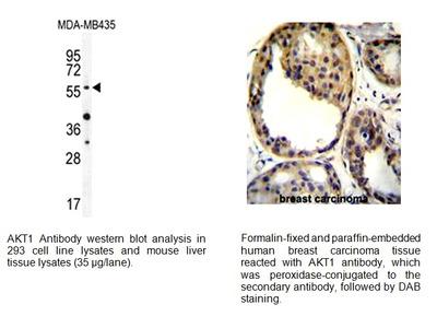 AKT1 (Thr308) Antibody