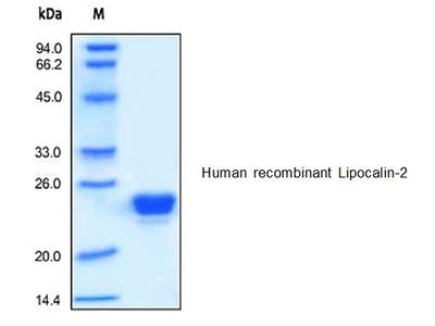 Human CellExp™ Lipocalin-2 / LCN2, human recombinant