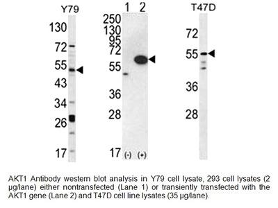 AKT1 Antibody (CT)