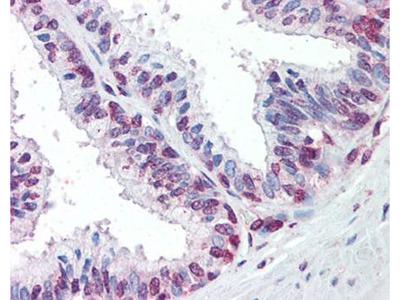ZIC3 antibody