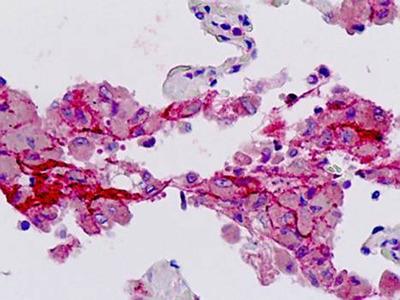 F2R antibody
