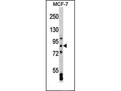 SATB2 antibody