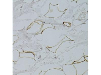 GPD1 antibody