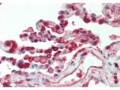 CFL1 antibody