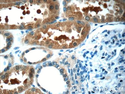 Anti-MAGIX Antibody Products | Biocompare com