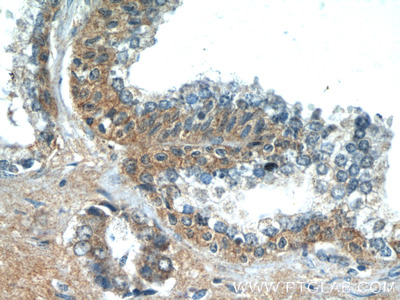 LZTS2 antibody