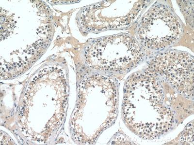 CST9L antibody
