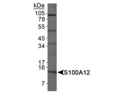 EN-RAGE / S100A12 Antibody