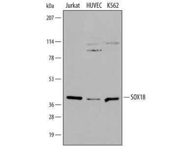 Human SOX18 Antibody