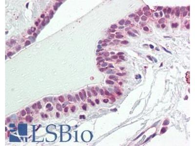 NUP210 / gp210 Polyclonal Antibody