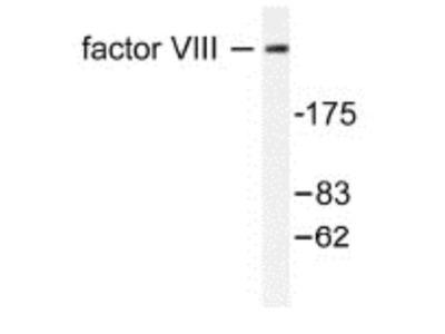Factor VIII Antibody