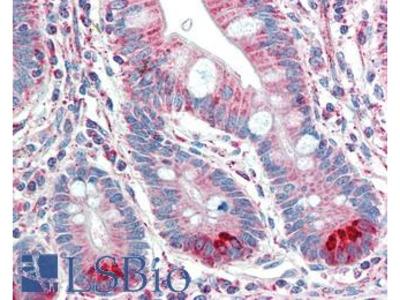TMPRSS5 Antibody