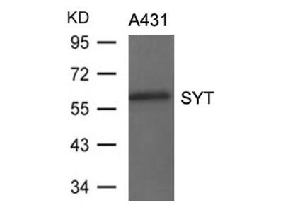 SS18 Polyclonal Antibody