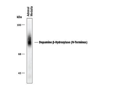 Dopamine beta-Hydroxylase N-Terminus Antibody