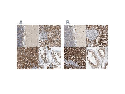 Anti-ACAT1 Antibody