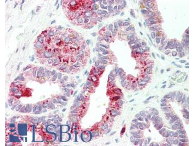 NAT1 / AAC1 Polyclonal Antibody