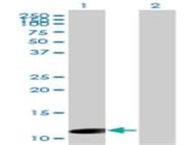 ORF1 FL49 Antibody (4E11)