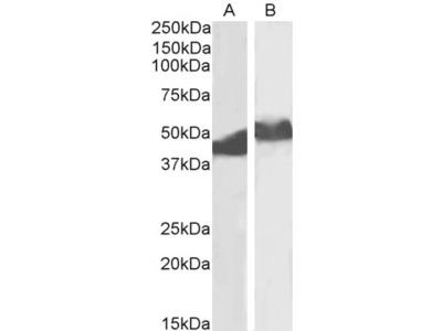 SERPINA1 / Alpha 1 Antitrypsin Antibody