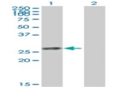 Thymidine Kinase 1 Antibody