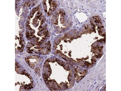 OR4C5 Antibody