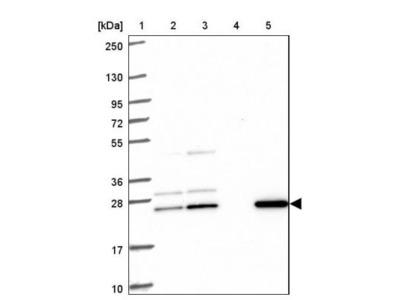CMP kinase Antibody
