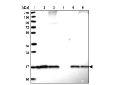 SUMO4 Antibody