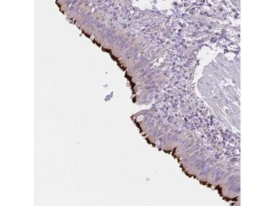 CCDC142 Antibody